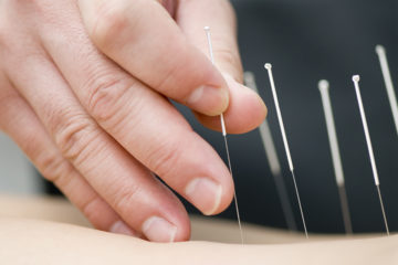 acupuncture-1-360x240